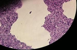 rhodotorula mucilaginosa